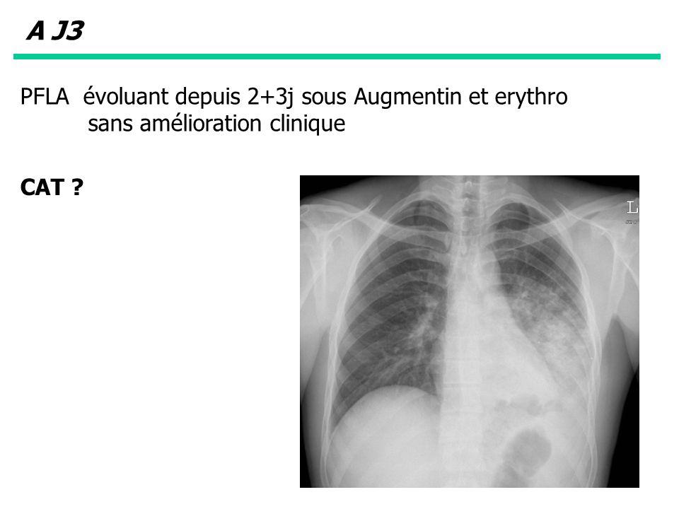 PFLA évoluant depuis 2+3j sous Augmentin et erythro sans amélioration clinique CAT ? A J3