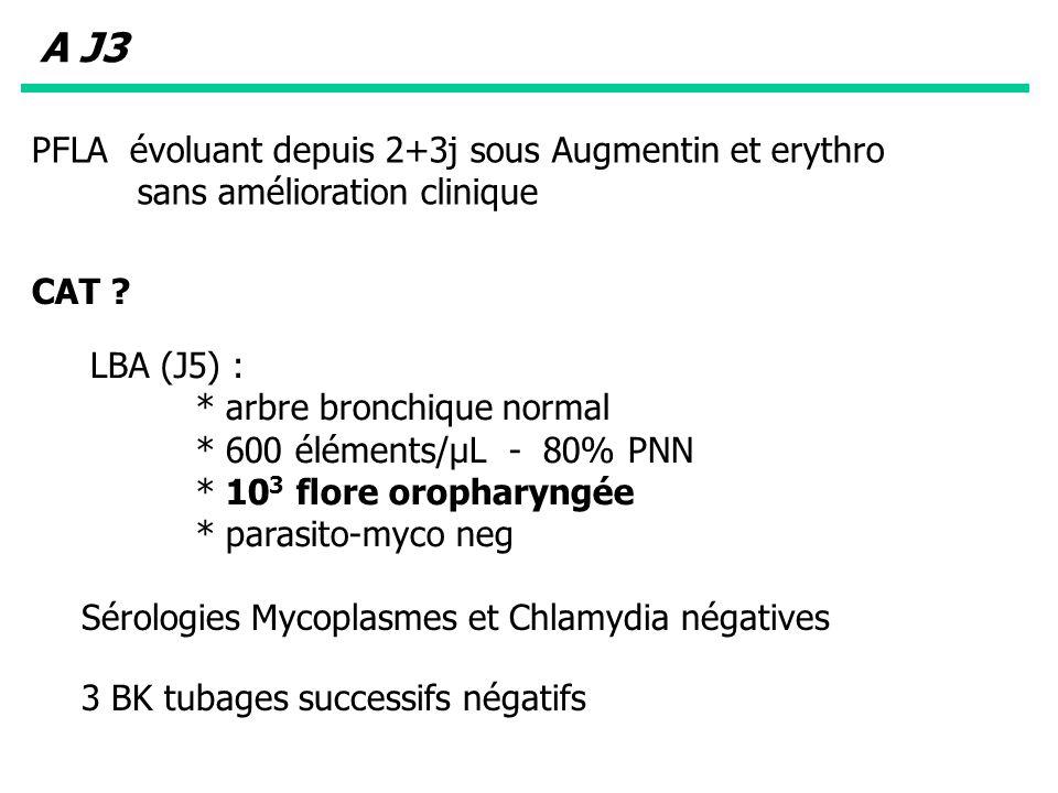 LBA (J5) : * arbre bronchique normal * 600 éléments/µL - 80% PNN * 10 3 flore oropharyngée * parasito-myco neg A J3 PFLA évoluant depuis 2+3j sous Aug