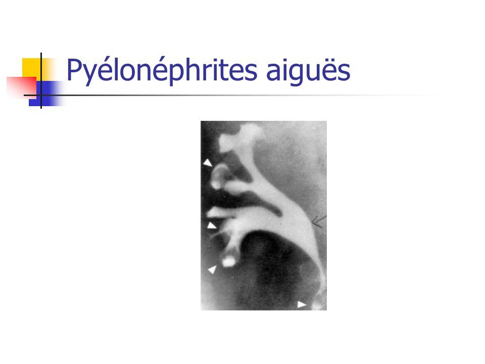 Pyélonéphrites aiguës