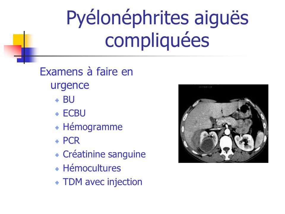 Pyélonéphrites aiguës compliquées Examens à faire en urgence BU ECBU Hémogramme PCR Créatinine sanguine Hémocultures TDM avec injection