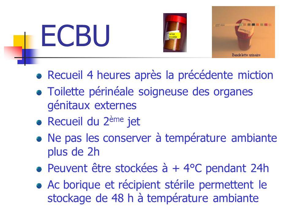 ECBU Recueil 4 heures après la précédente miction Toilette périnéale soigneuse des organes génitaux externes Recueil du 2 ème jet Ne pas les conserver