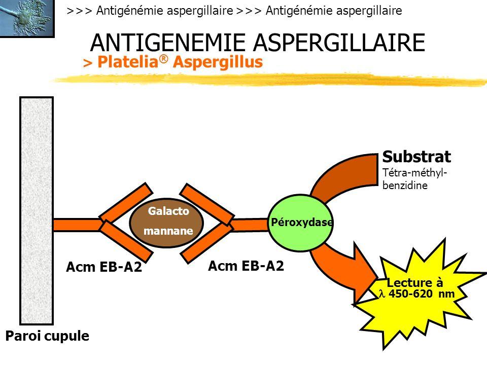>>> Antigénémie aspergillaire ANTIGENEMIE ASPERGILLAIRE > Platelia ® Aspergillus Paroi cupule Acm EB-A2 Galacto mannane Péroxydase Substrat Tétra-méthyl- benzidine 450-620 nm Lecture à