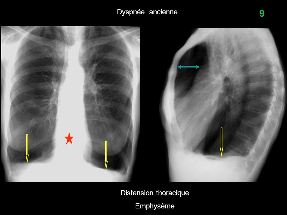 9 Dyspnée ancienne Distension thoracique Emphysème