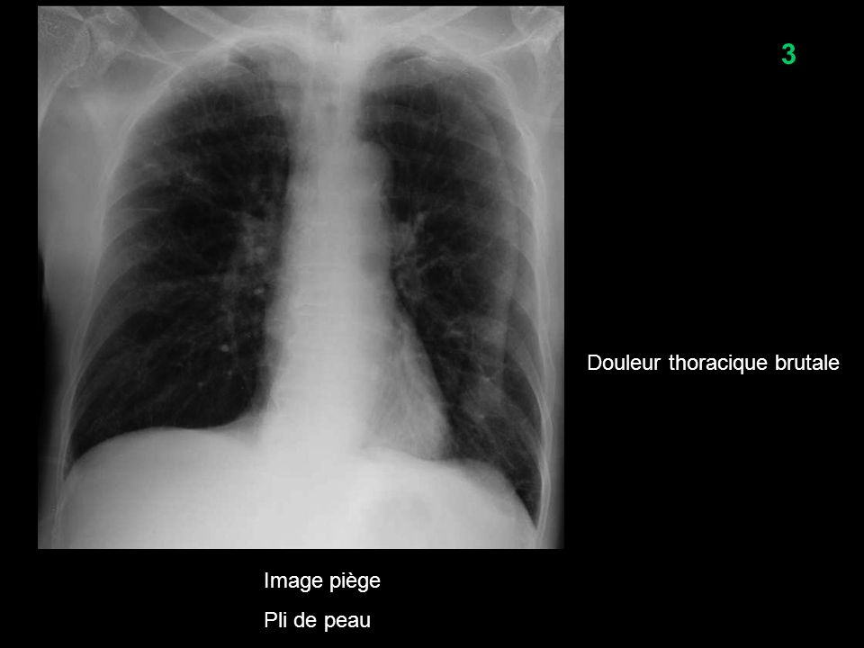 3 Douleur thoracique brutale Image piège Pli de peau