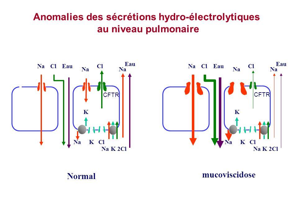 Anomalies des sécrétions hydro-électrolytiques au niveau pulmonaire Na2ClK NaClEau Na Cl Na Eau NaClK K Normal CFTR mucoviscidose NaClEau Na Cl Na Eau