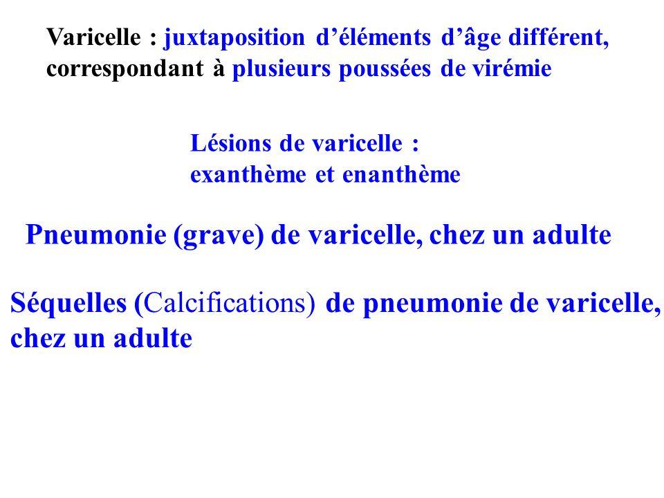 Varicelle : juxtaposition déléments dâge différent, correspondant à plusieurs poussées de virémie Lésions de varicelle : exanthème et enanthème Pneumo