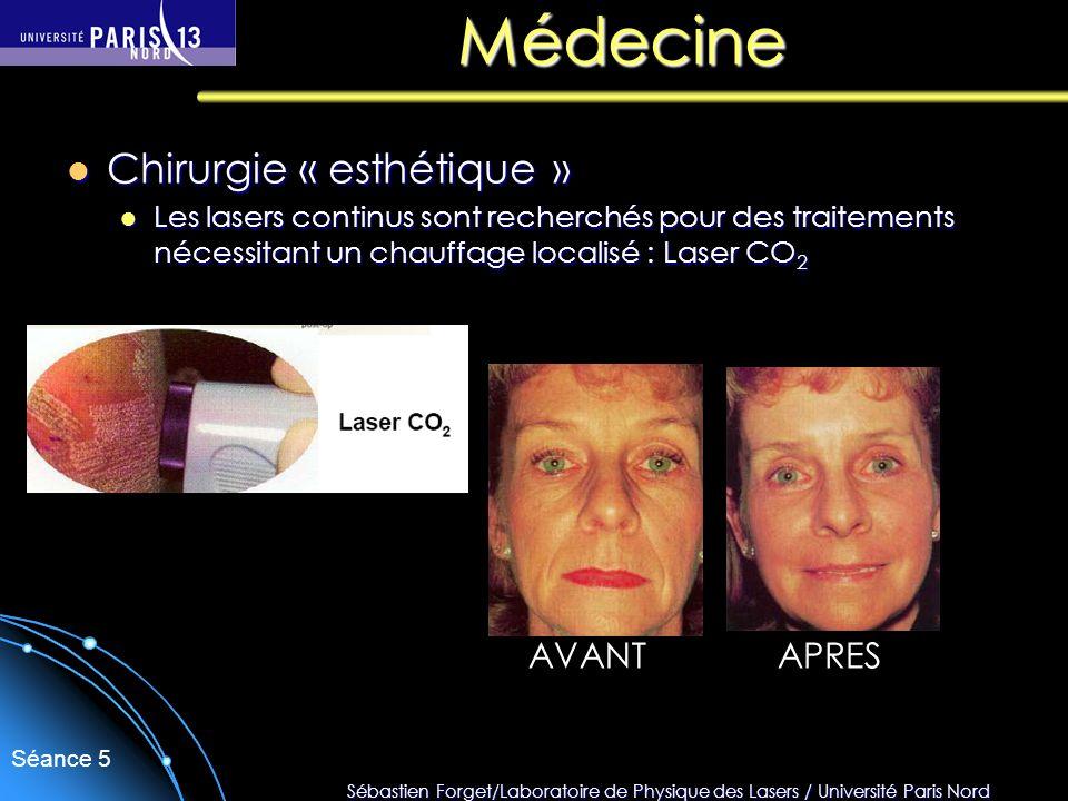 Sébastien Forget/Laboratoire de Physique des Lasers / Université Paris Nord Séance 5 Médecine Chirurgie « esthétique » Chirurgie « esthétique » Les la