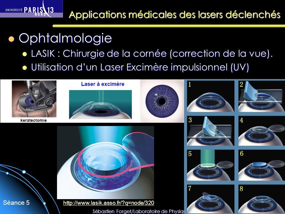 Sébastien Forget/Laboratoire de Physique des Lasers / Université Paris Nord Séance 5 Applications médicales des lasers déclenchés Ophtalmologie Ophtal