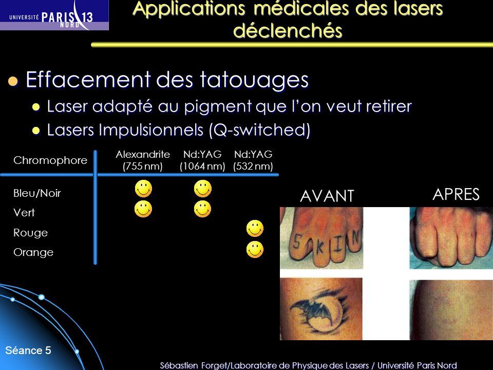 Sébastien Forget/Laboratoire de Physique des Lasers / Université Paris Nord Séance 5 Effacement des tatouages Effacement des tatouages Laser adapté au
