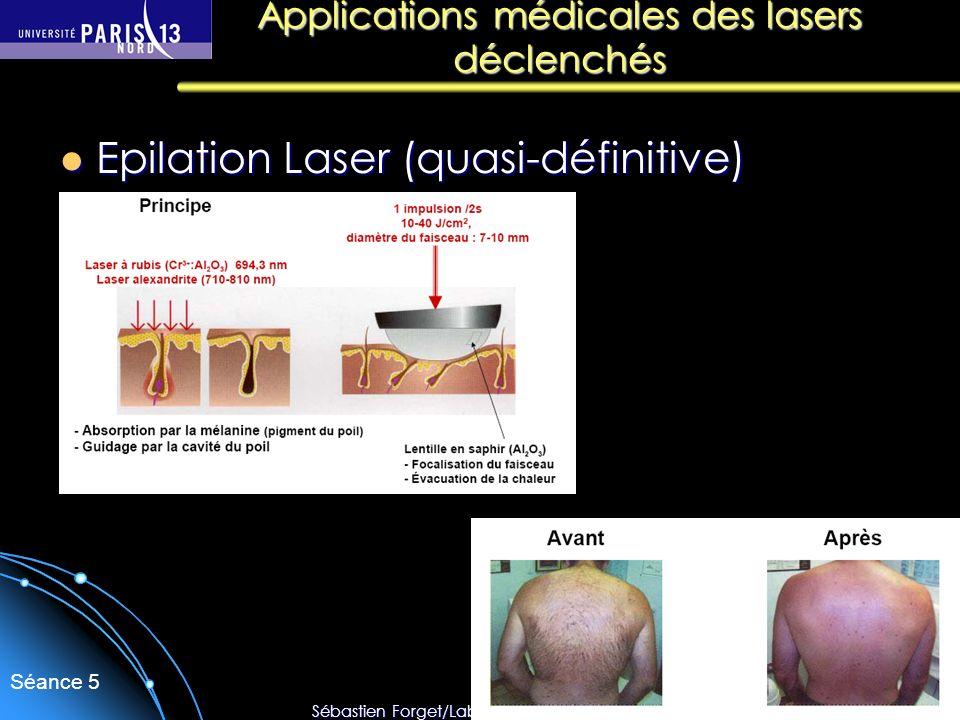Sébastien Forget/Laboratoire de Physique des Lasers / Université Paris Nord Séance 5 Epilation Laser (quasi-définitive) Epilation Laser (quasi-définit