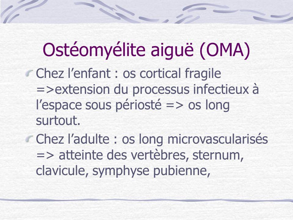 Ostéomyélite aiguë (OMA) Chez lenfant : os cortical fragile =>extension du processus infectieux à lespace sous périosté => os long surtout. Chez ladul