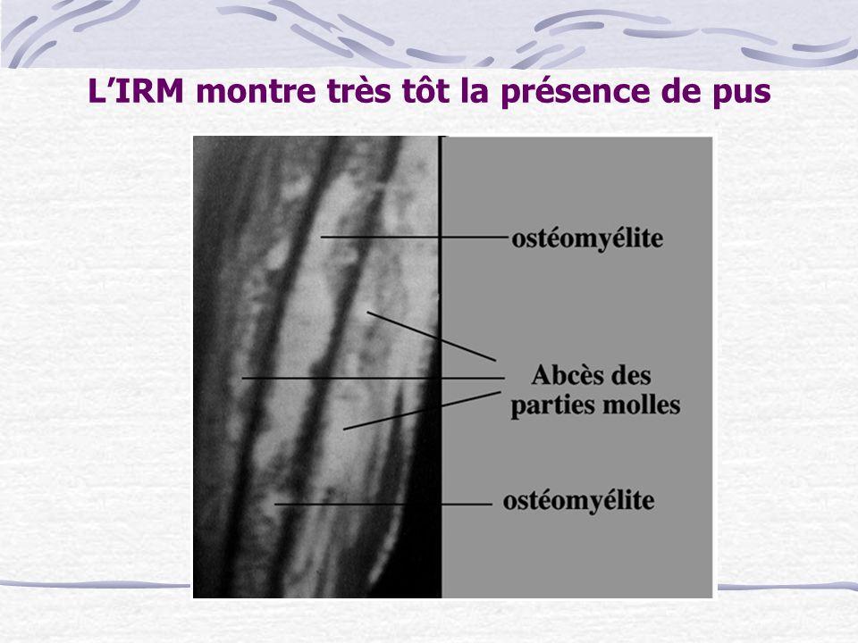 LIRM montre très tôt la présence de pus