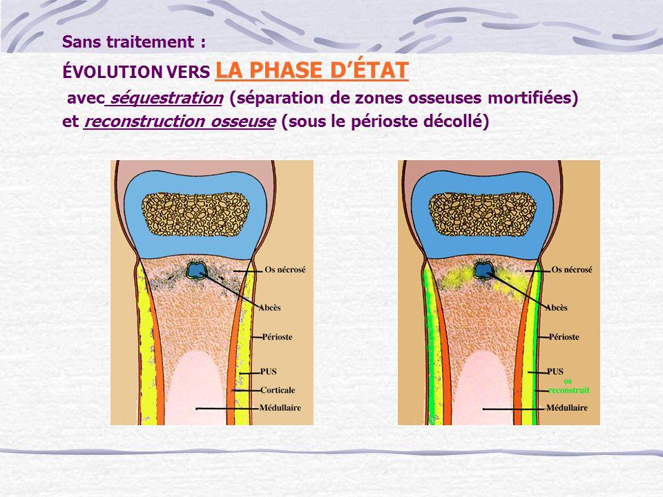 Sans traitement : ÉVOLUTION VERS LA PHASE DÉTAT avec séquestration (séparation de zones osseuses mortifiées) et reconstruction osseuse (sous le périos