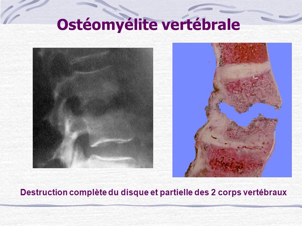 Ostéomyélite vertébrale Destruction complète du disque et partielle des 2 corps vertébraux