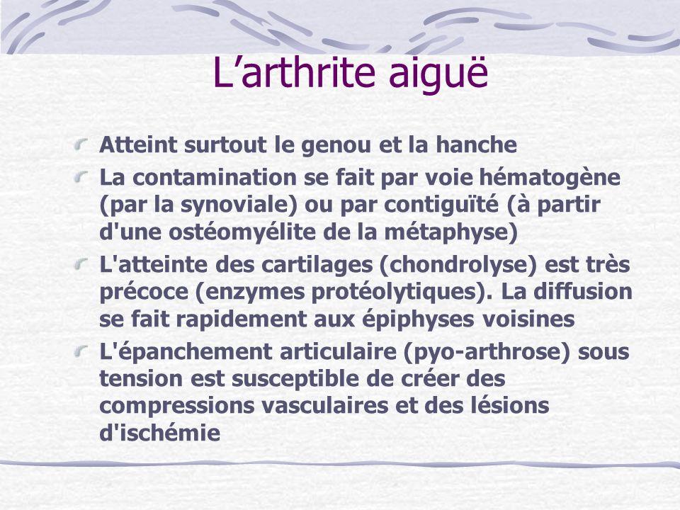 Larthrite aiguë Atteint surtout le genou et la hanche La contamination se fait par voie hématogène (par la synoviale) ou par contiguïté (à partir d'un