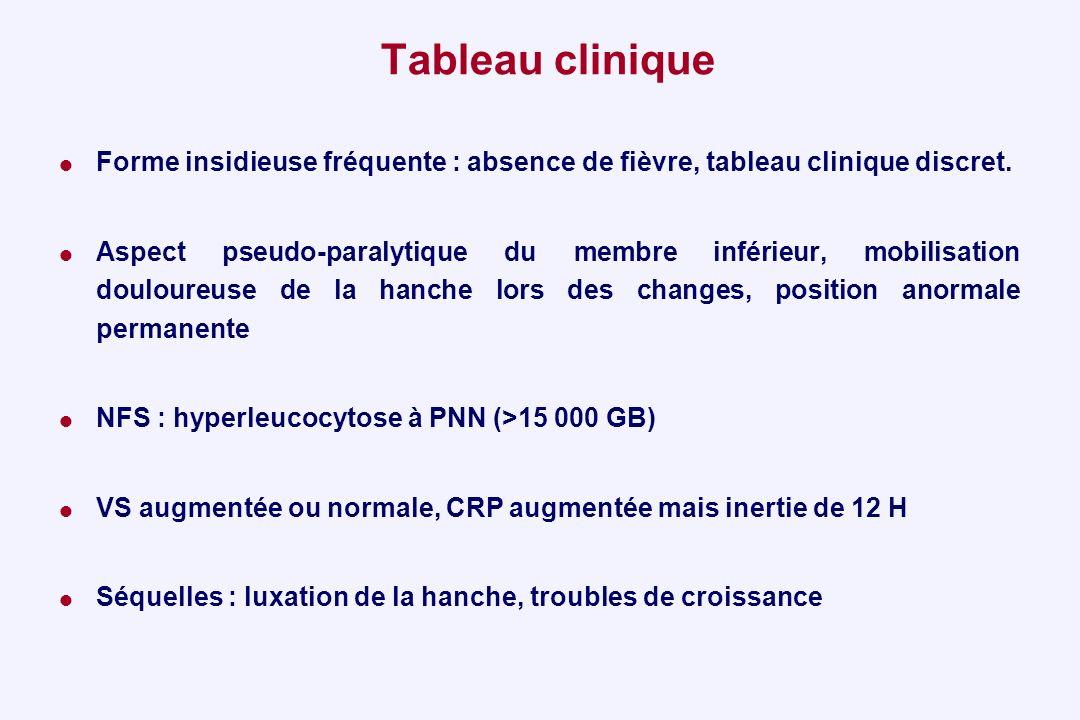 Tableau clinique Forme insidieuse fréquente : absence de fièvre, tableau clinique discret. Aspect pseudo-paralytique du membre inférieur, mobilisation