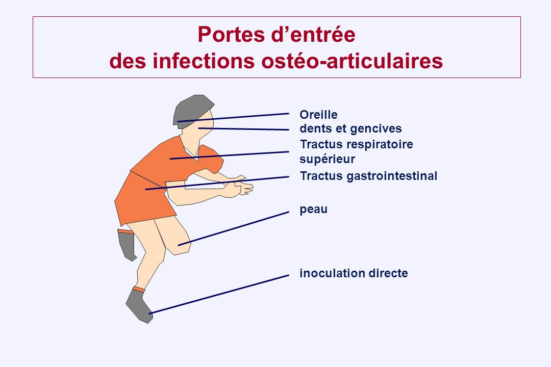 Portes dentrée des infections ostéo-articulaires Oreille dents et gencives Tractus respiratoire supérieur Tractus gastrointestinal peau inoculation di