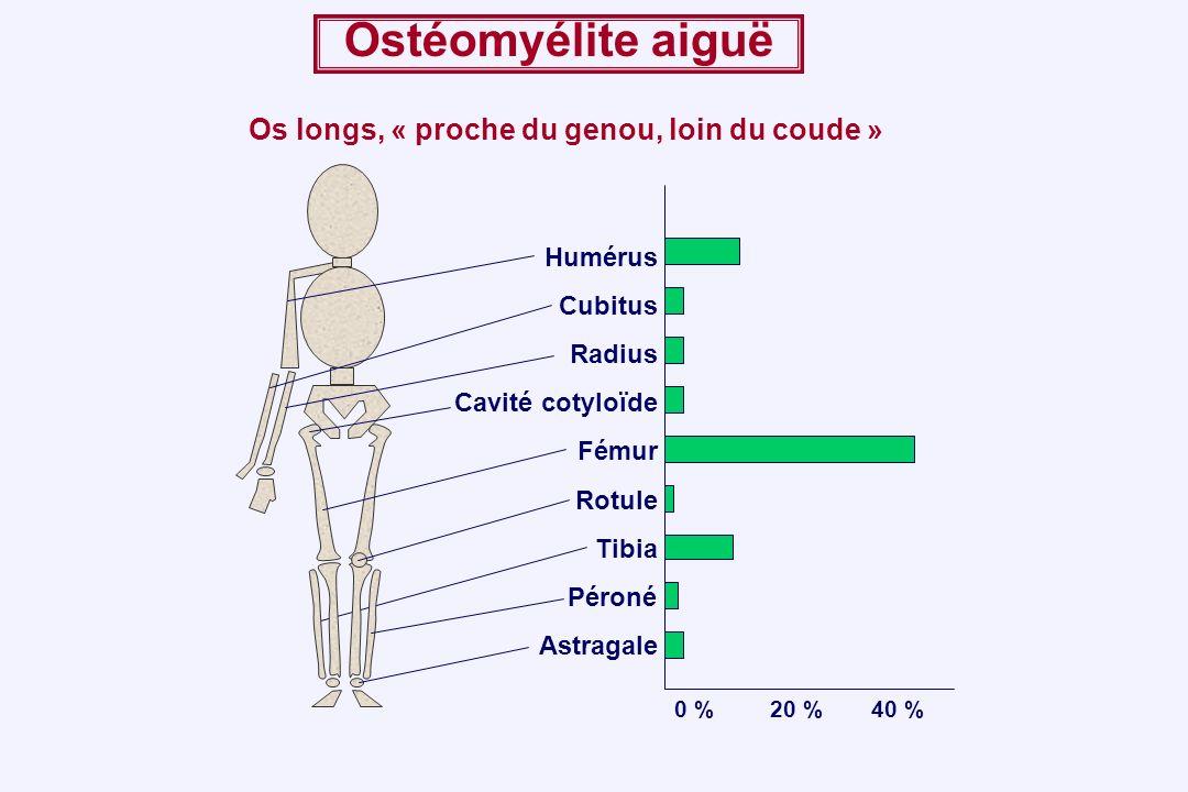 0 %20 %40 % Humérus Cubitus Cavité cotyloïde Fémur Rotule Tibia Péroné Astragale Radius Ostéomyélite aiguë Os longs, « proche du genou, loin du coude