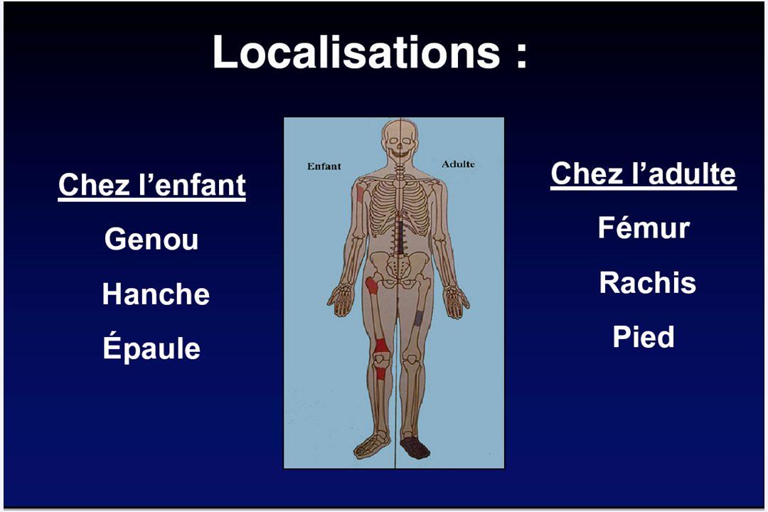 Documentation microbiologique des 47 arthrites + ostéo-arthrites 44 liquides articulaires 44 Hémocultures 28 positifs 16 K.