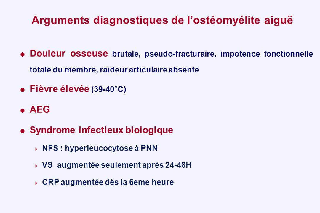Arguments diagnostiques de lostéomyélite aiguë Douleur osseuse brutale, pseudo-fracturaire, impotence fonctionnelle totale du membre, raideur articula