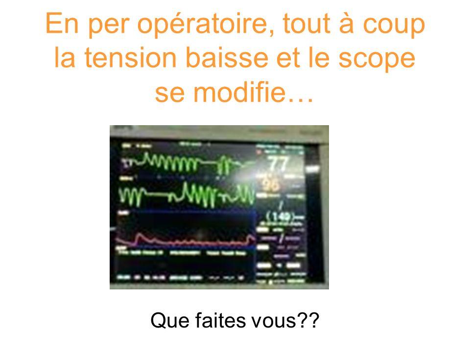 En per opératoire, tout à coup la tension baisse et le scope se modifie… Que faites vous??