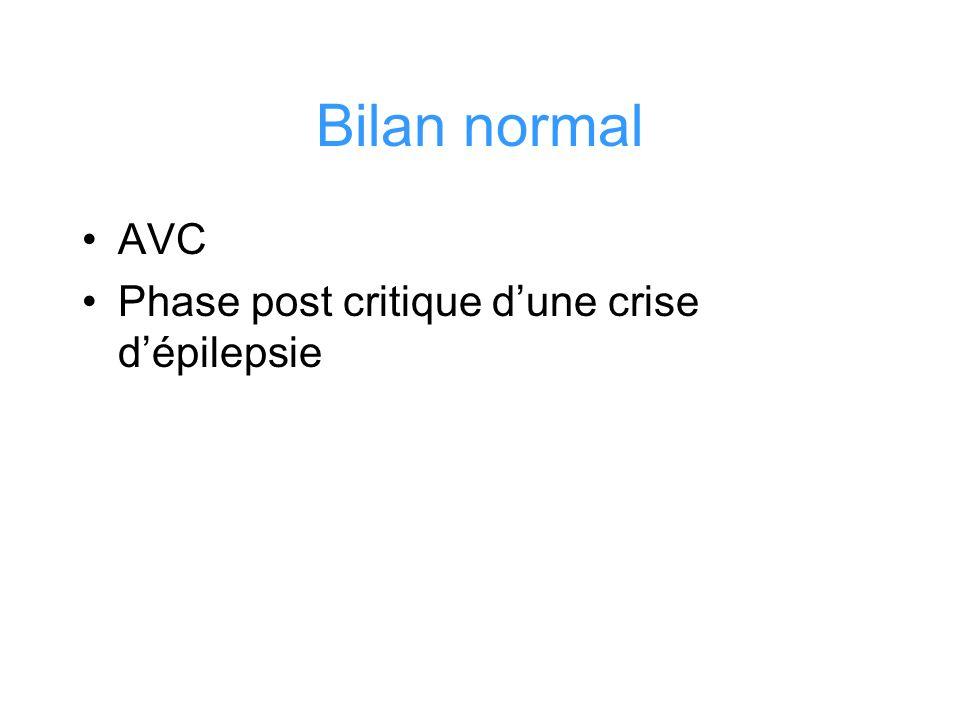 Bilan normal AVC Phase post critique dune crise dépilepsie