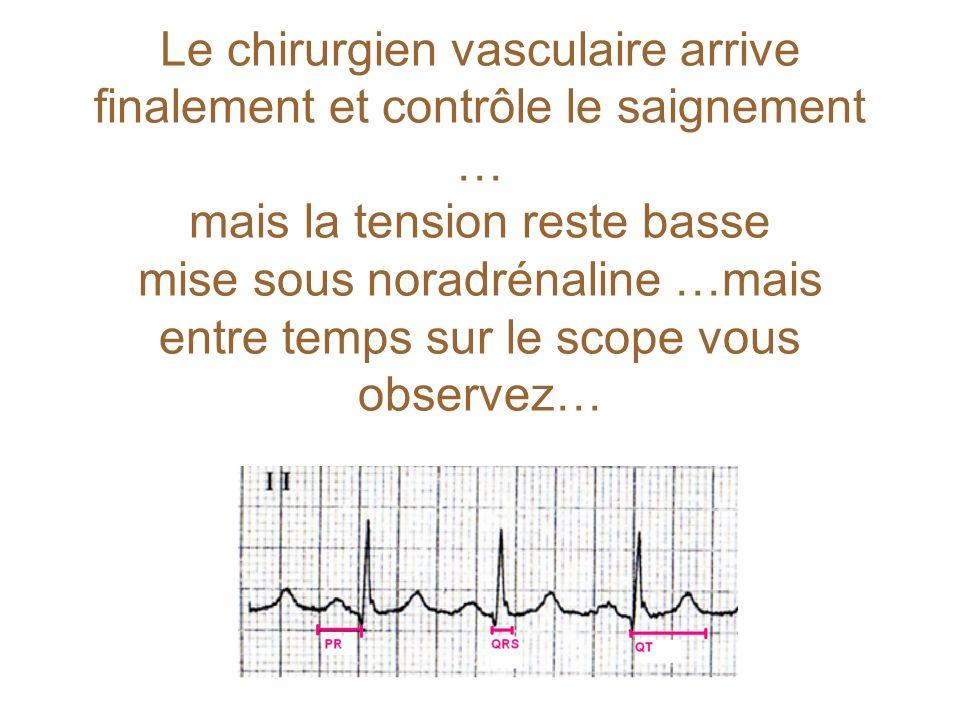 Le chirurgien vasculaire arrive finalement et contrôle le saignement … mais la tension reste basse mise sous noradrénaline …mais entre temps sur le sc