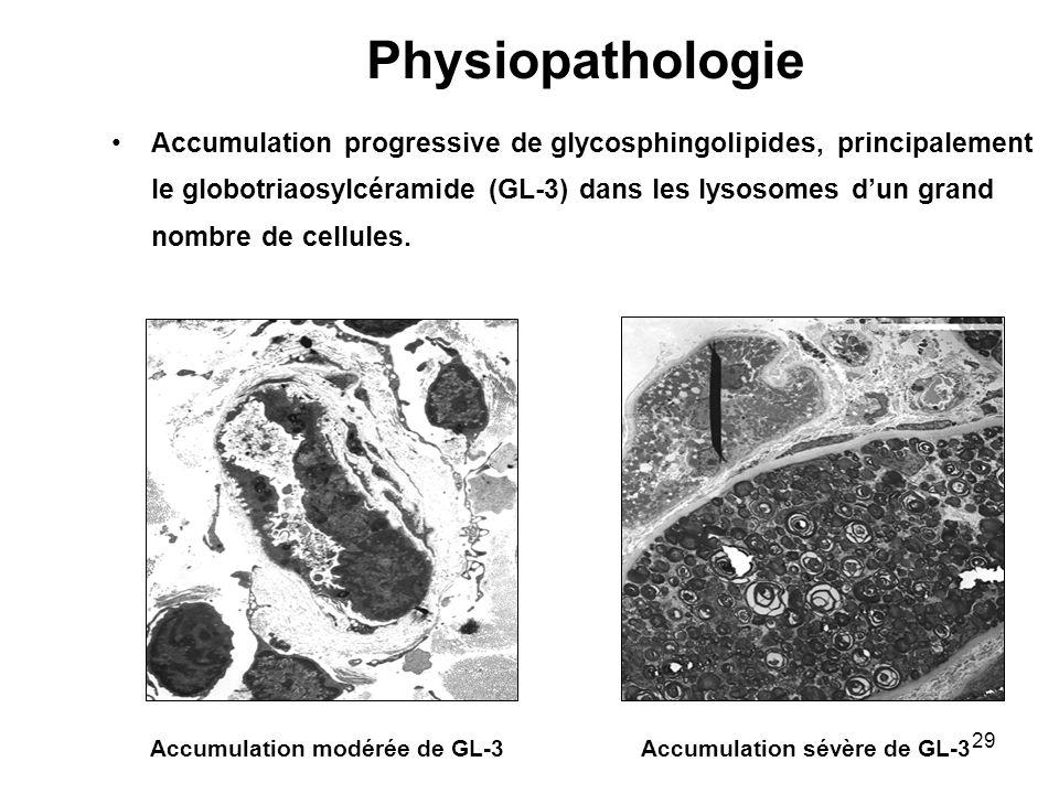 28 Maladie de surcharge du lysosome : sphingolipidose Incidence :1 naissance masculine / 40 000 Mode de transmission récessif lié à lX Déficit enzymatique en -galactosidase A Définition