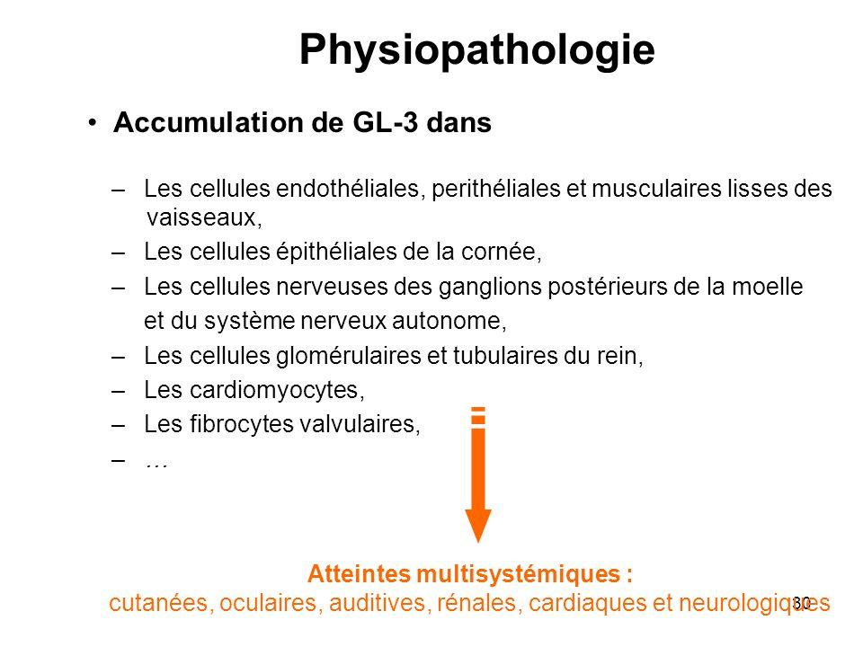29 Physiopathologie Accumulation progressive de glycosphingolipides, principalement le globotriaosylcéramide (GL-3) dans les lysosomes dun grand nombre de cellules.