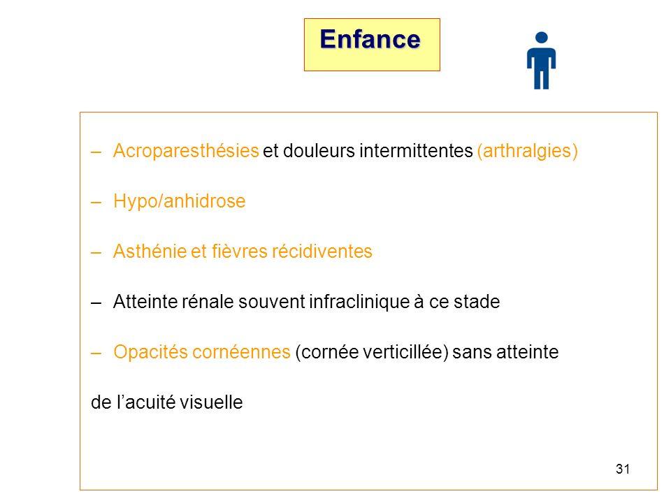 30 Physiopathologie Accumulation de GL-3 dans – Les cellules endothéliales, perithéliales et musculaires lisses des vaisseaux, – Les cellules épithéliales de la cornée, – Les cellules nerveuses des ganglions postérieurs de la moelle et du système nerveux autonome, – Les cellules glomérulaires et tubulaires du rein, – Les cardiomyocytes, – Les fibrocytes valvulaires, – … Atteintes multisystémiques : cutanées, oculaires, auditives, rénales, cardiaques et neurologiques