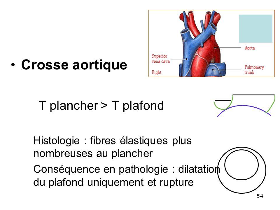 Crosse aortique T plancher > T plafond Histologie : fibres élastiques plus nombreuses au plancher Conséquence en pathologie : dilatation du plafond un