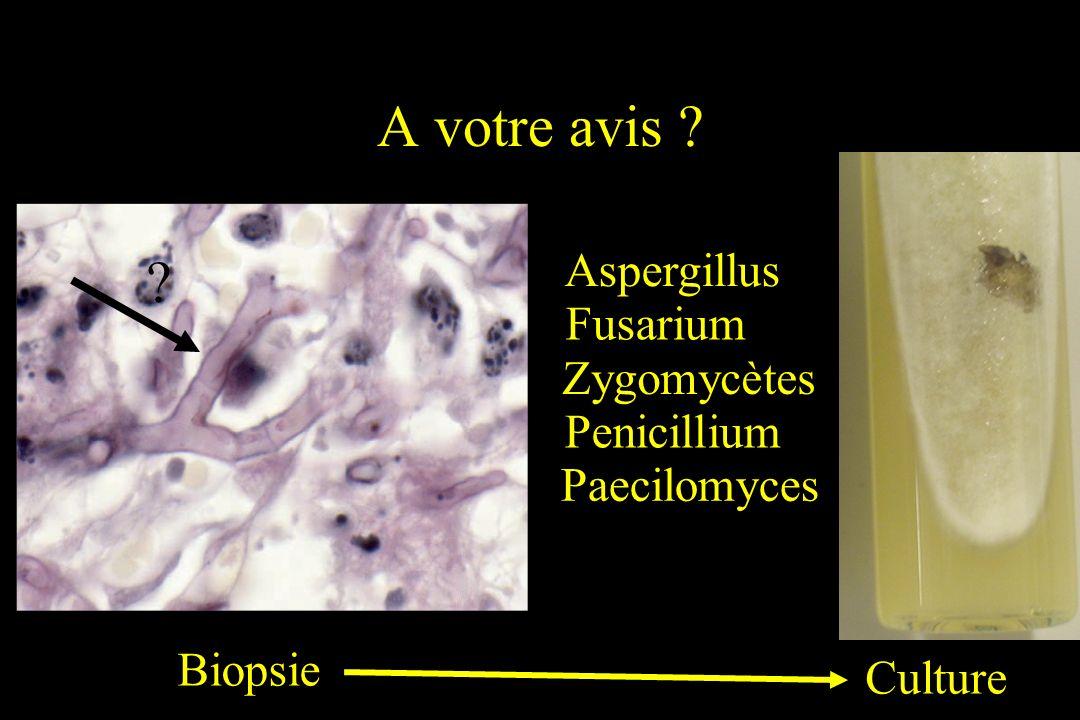 A votre avis ? Aspergillus Fusarium Zygomycètes Penicillium Paecilomyces Biopsie Culture ?