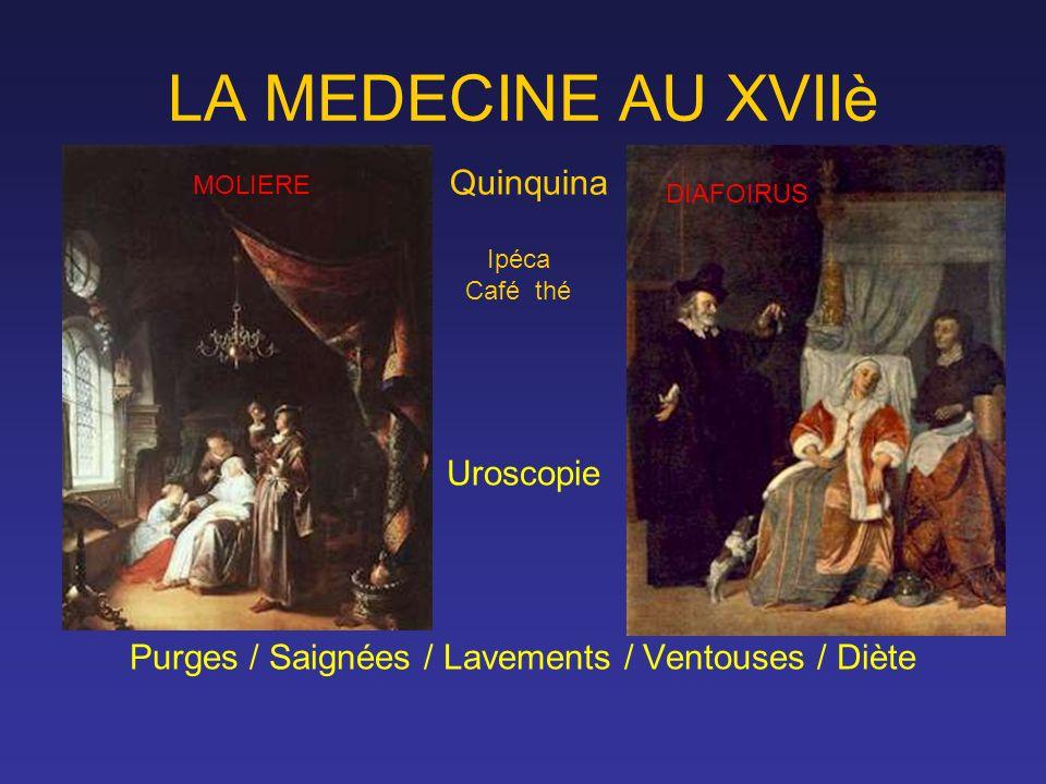 LA MEDECINE AU XVIIè Uroscopie Purges / Saignées / Lavements / Ventouses / Diète Quinquina Ipéca Café thé DIAFOIRUS MOLIERE
