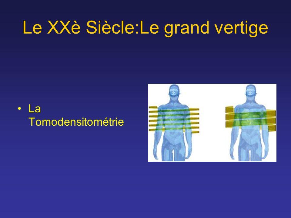 Le XXè Siècle:Le grand vertige La Tomodensitométrie