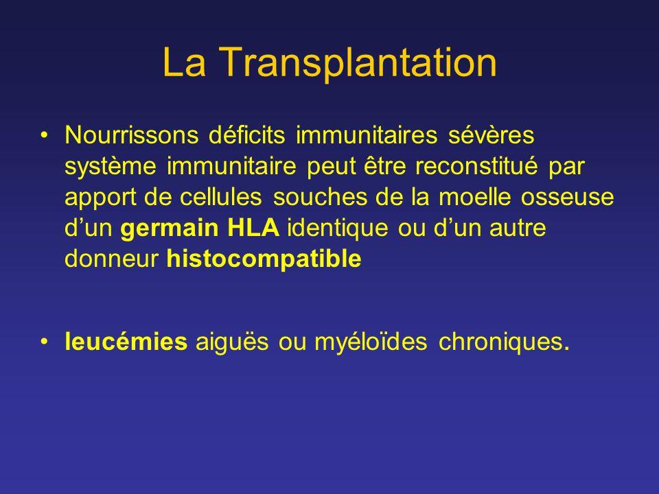 La Transplantation Nourrissons déficits immunitaires sévères système immunitaire peut être reconstitué par apport de cellules souches de la moelle oss