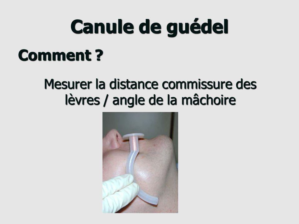 Canule de guédel Comment .