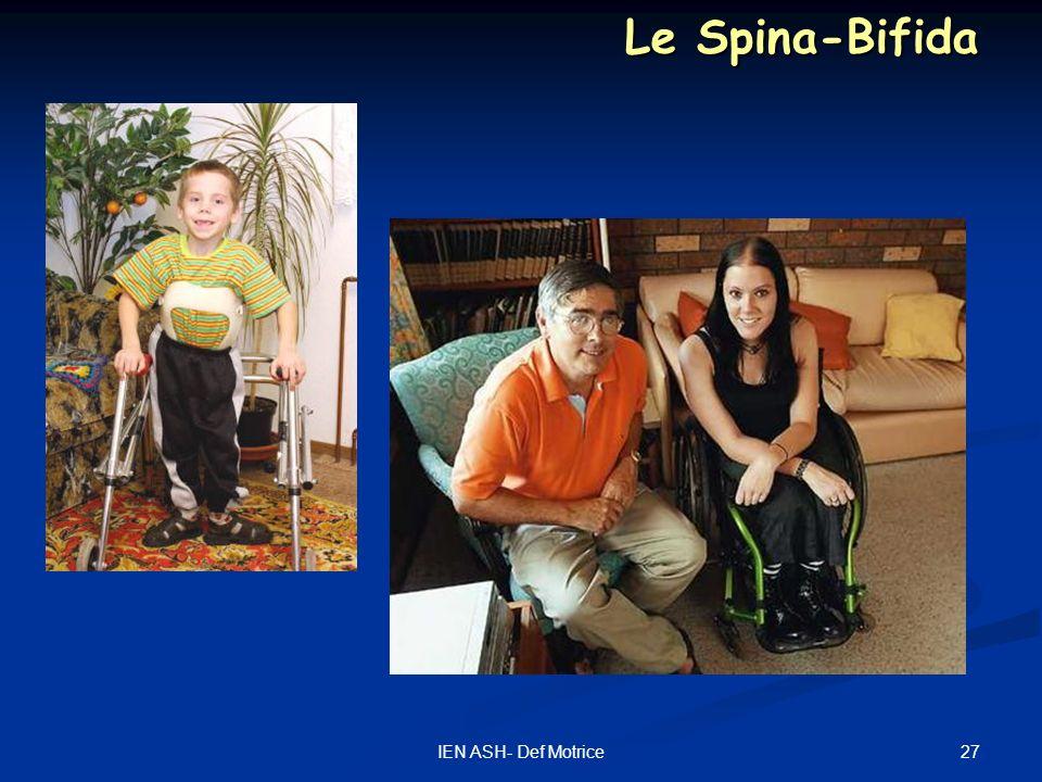 27IEN ASH- Def Motrice Le Spina-Bifida