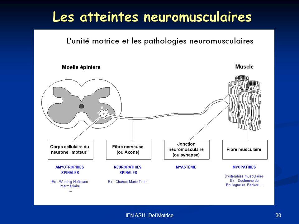 30IEN ASH- Def Motrice Les atteintes neuromusculaires