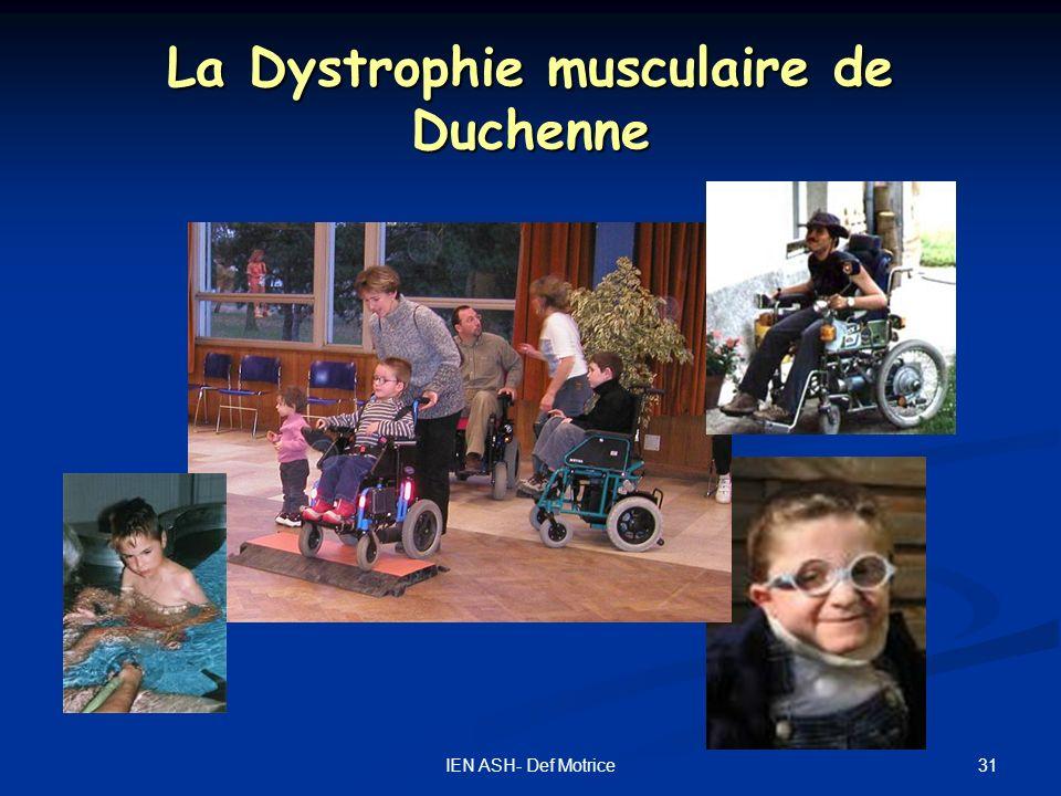 31IEN ASH- Def Motrice La Dystrophie musculaire de Duchenne