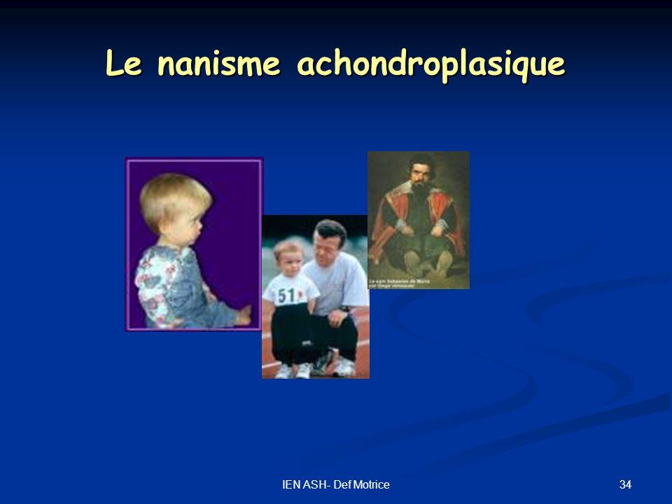 34IEN ASH- Def Motrice Le nanisme achondroplasique