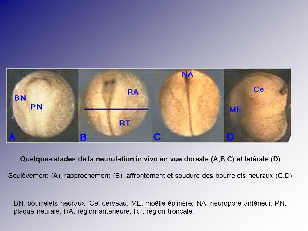 Quelques stades de la neurulation in vivo en vue dorsale (A,B,C) et latérale (D). Soulèvement (A), rapprochement (B), affrontement et soudure des bour