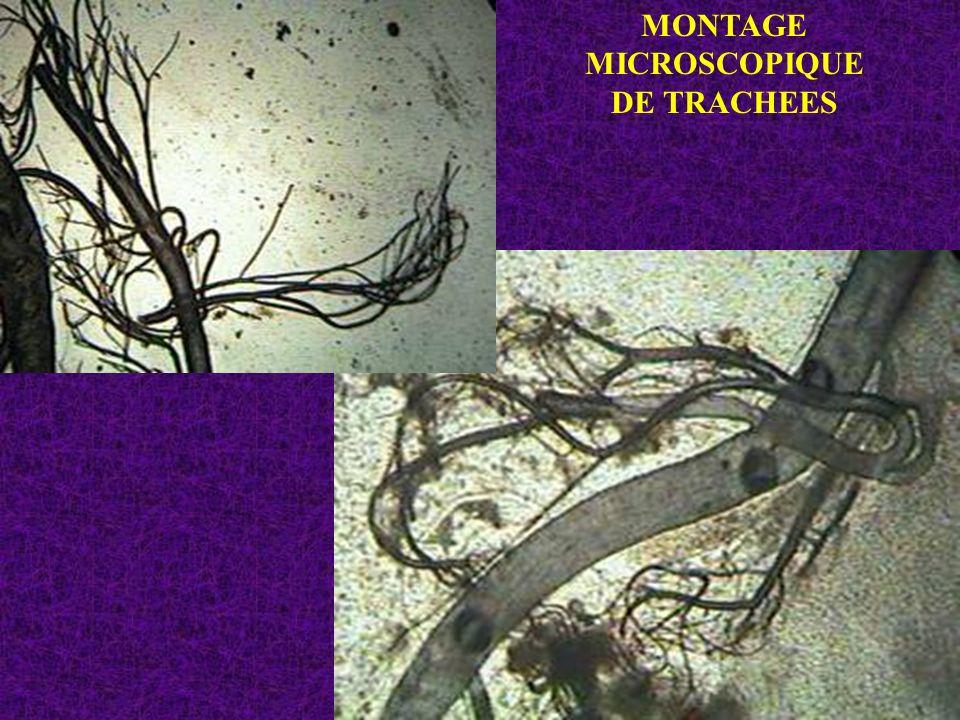 MONTAGE MICROSCOPIQUE DE TRACHEES