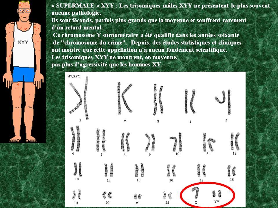 « SUPERMALE » XYY : Les trisomiques mâles XYY ne présentent le plus souvent aucune pathologie.