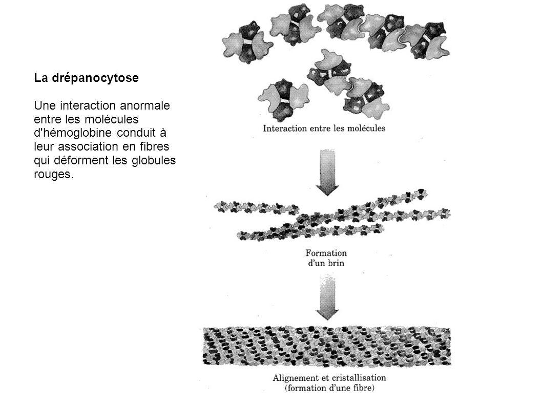 La drépanocytose Une interaction anormale entre les molécules d'hémoglobine conduit à leur association en fibres qui déforment les globules rouges.