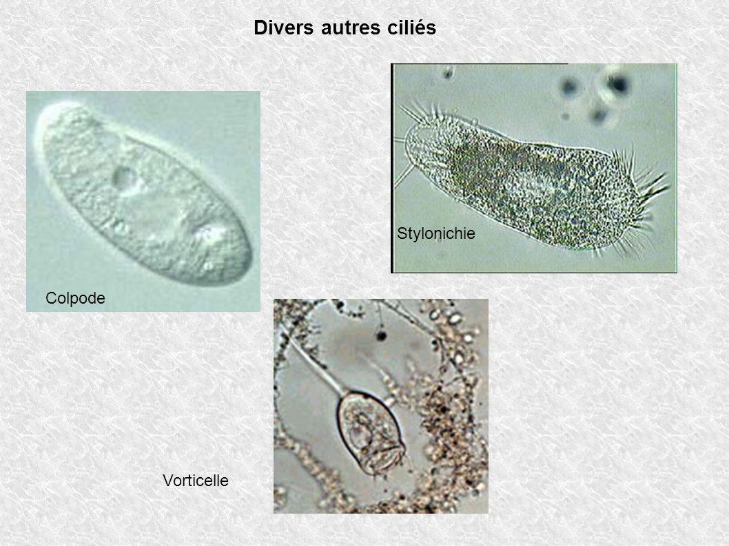 Divers autres ciliés Colpode Vorticelle Stylonichie