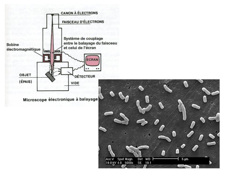 Charpente cellulosique de la paroi végétale Virus de la mosaïque du tabac (VMT) OMBRAGE METALLIQUE COLORATION NEGATIVE