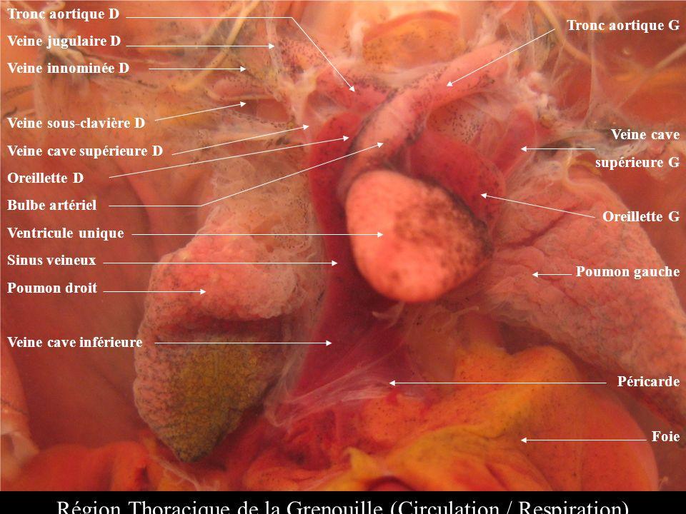 Tronc aortique D Veine jugulaire D Veine innominée D Veine sous-clavière D Veine cave supérieure D Oreillette D Bulbe artériel Ventricule unique Sinus