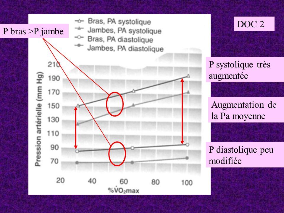 Augmentation de la Pa moyenne P diastolique peu modifiée P systolique très augmentée P bras >P jambe DOC 2