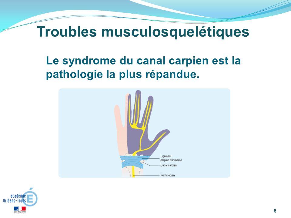 6 Troubles musculosquelétiques Le syndrome du canal carpien est la pathologie la plus répandue.