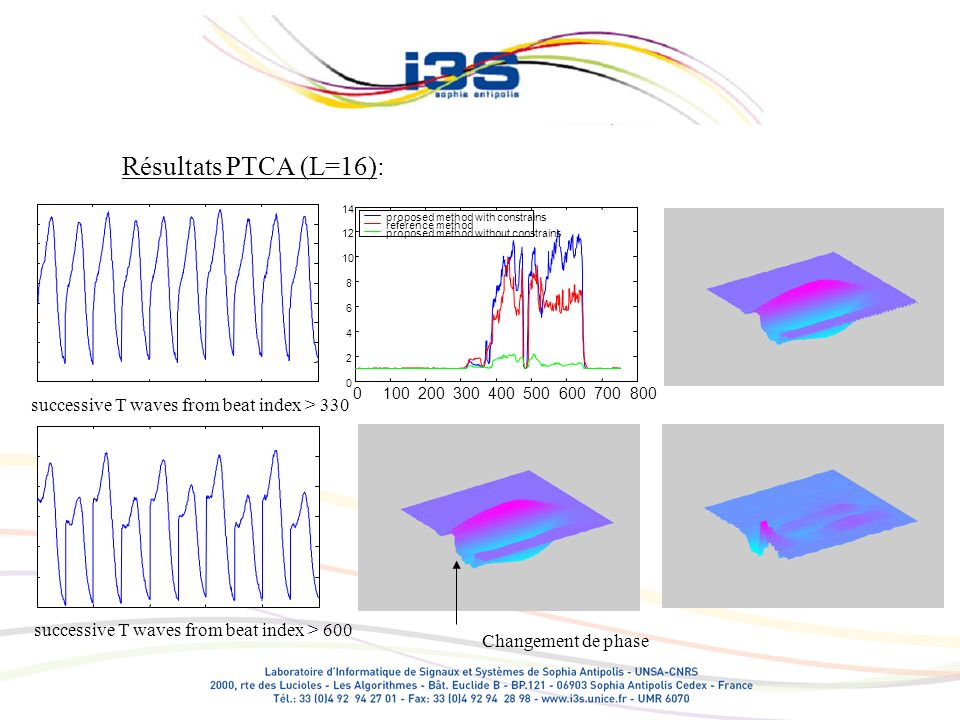 Résultats PTCA (L=16): successive T waves from beat index > 330 successive T waves from beat index > 600 0100200300400500600700800 0 2 4 6 8 10 12 14